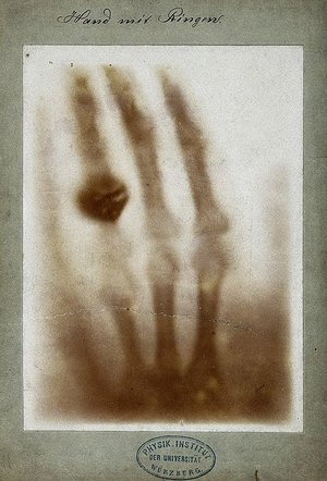 First_medical_X-ray_by_Wilhelm_Röntgen_of_his_wife_Anna_Bertha_Ludwig's_hand_-_18951222.jpg