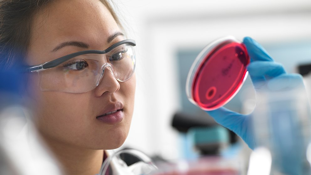 Woman with lab glasses looking at culture in petri dish